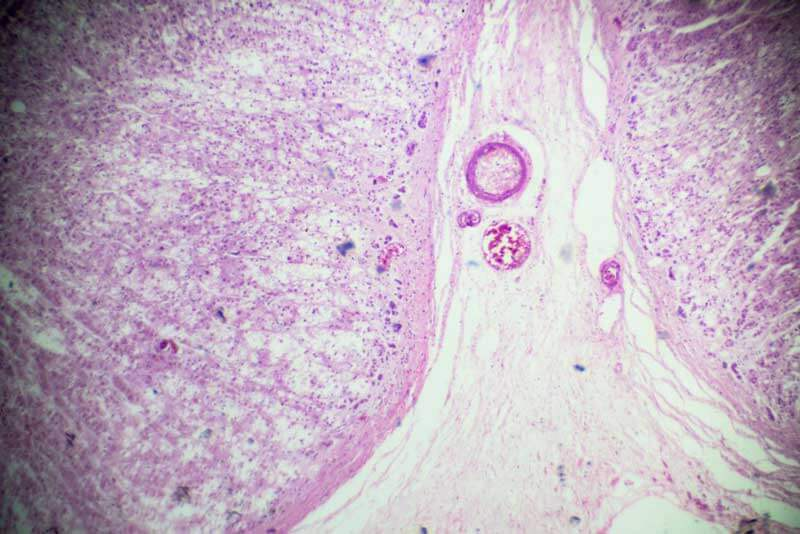 adrenal gland microscope los angeles